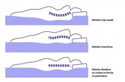 Matelas fixe : Faut-il un matelas très ferme quand on a mal au dos ?